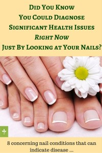 How You Can Diagnose8Health IssuesBy Looking at Your NailsRight Now